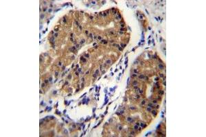 Image no. 1 for anti-Deleted in Colorectal Carcinoma (DCC) (AA 642-670), (Middle Region) antibody (ABIN953653)