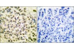 Image no. 3 for anti-CCAAT/enhancer Binding Protein (C/EBP), beta (CEBPB) (AA 201-250), (pThr235) antibody (ABIN1531213)