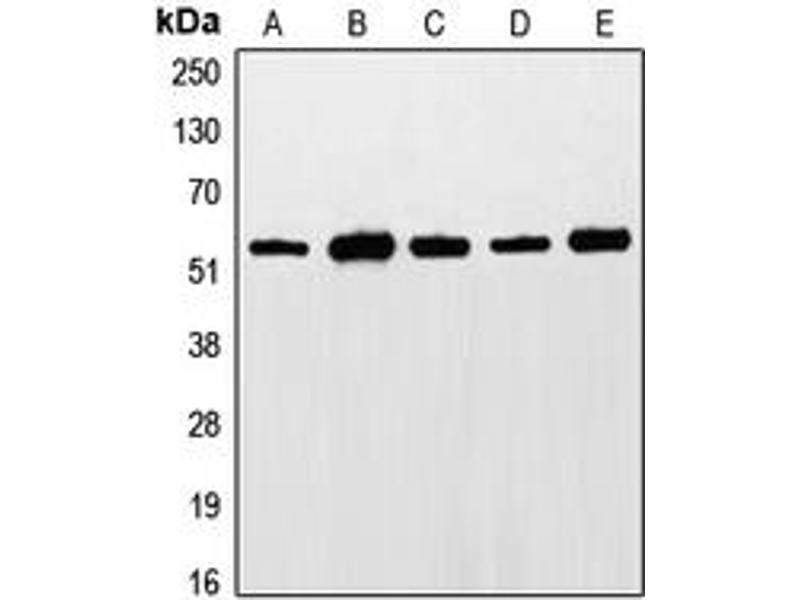Image no. 3 for anti-V-Ets erythroblastosis Virus E26 Oncogene Homolog 1 (Avian) (ETS1) (N-Term), (pSer38) antibody (ABIN2707503)