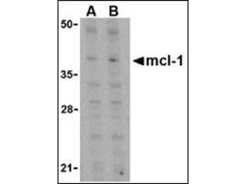Western Blotting (WB) image for anti-MCL-1 antibody (Induced Myeloid Leukemia Cell Differentiation Protein Mcl-1) (C-Term) (ABIN500252)