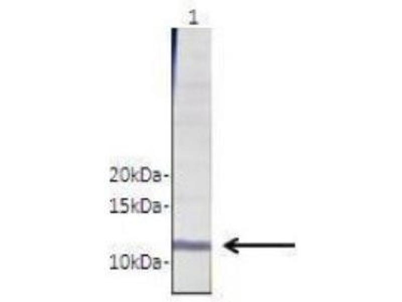 Western Blotting (WB) image for anti-Ras Homolog Gene Family, Member C (RHOC) (N-Term) antibody (ABIN4891935)