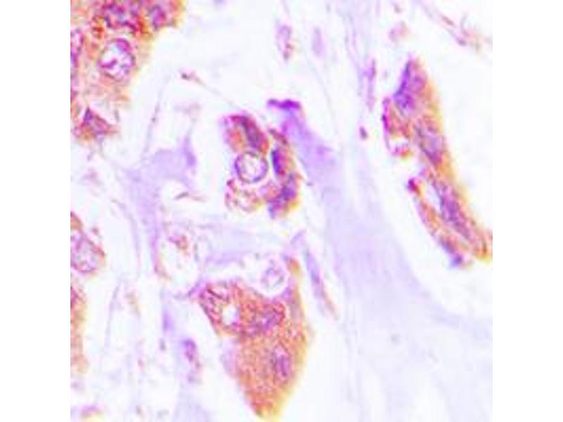 Immunohistochemistry (IHC) image for anti-Cardiotrophin 1 antibody (CTF1) (N-Term) (ABIN2707388)