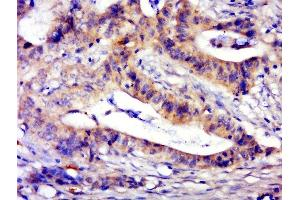 Image no. 1 for anti-Family with Sequence Similarity 189, Member B (FAM189B) antibody (ABIN1387628)
