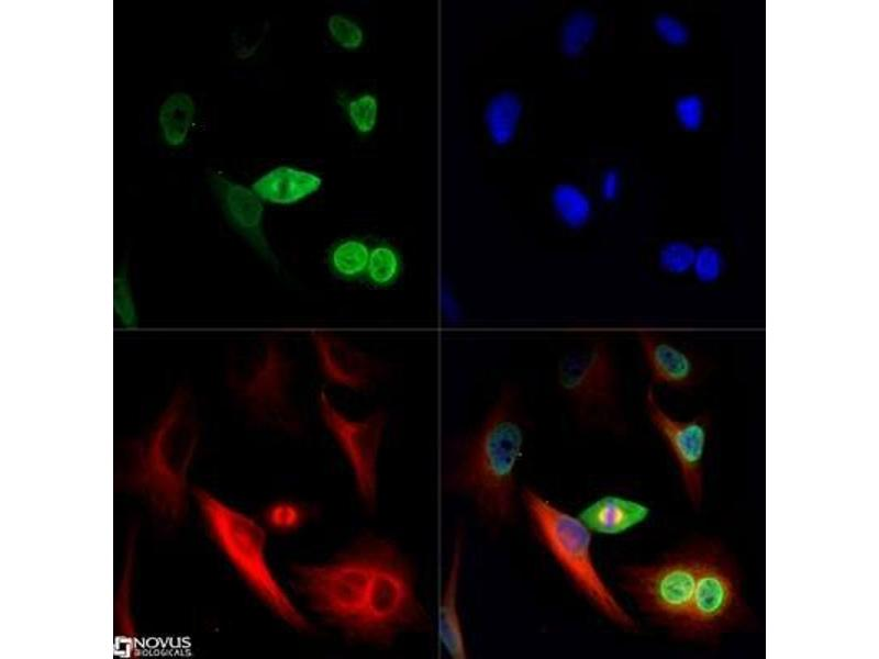 Immunofluorescence (IF) image for anti-Nuclear Mitotic Apparatus Protein 1 (NUMA1) antibody (ABIN152988)
