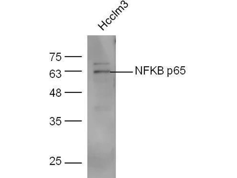 Western Blotting (WB) image for anti-Nuclear Factor-KB P65 (NFkBP65) (AA 50-100) antibody (ABIN668961)