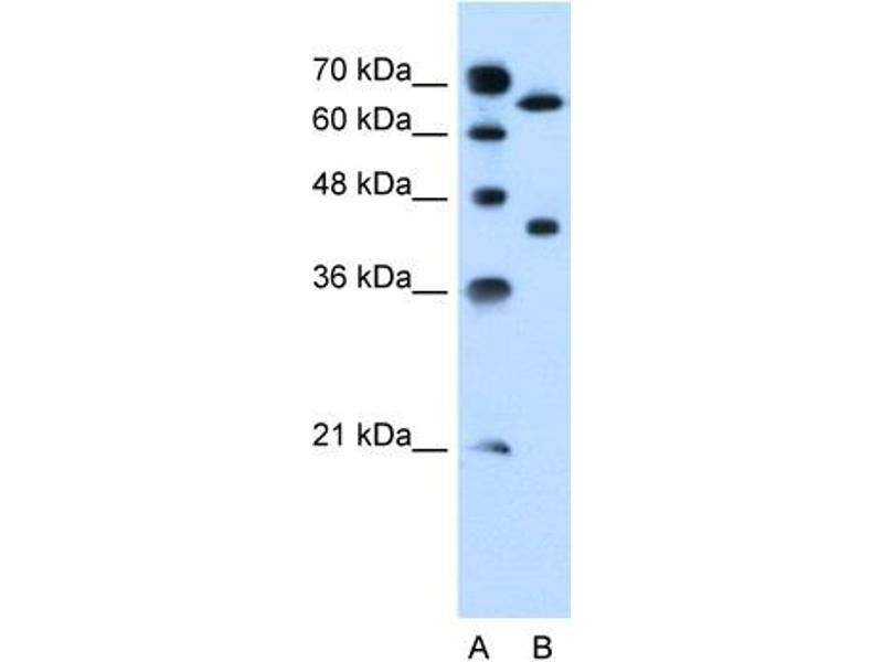 Western Blotting (WB) image for anti-Solute Carrier Organic Anion Transporter Family, Member 1A2 (SLCO1A2) (Middle Region) antibody (ABIN310517)