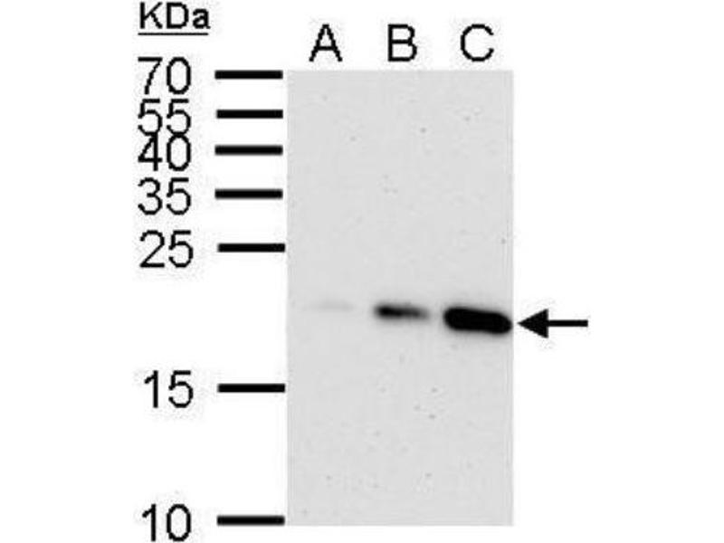 Western Blotting (WB) image for anti-Cyclin-Dependent Kinase Inhibitor 1A (p21, Cip1) (CDKN1A) (Center) antibody (ABIN4342351)