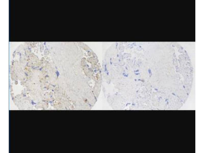 Immunocytochemistry (ICC) image for anti-ATP-Binding Cassette, Sub-Family C (CFTR/MRP), Member 8 (ABCC8) antibody (ABIN4356993)