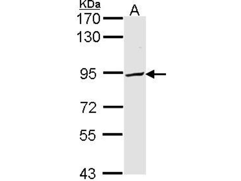 Western Blotting (WB) image for anti-phosphofructokinase, Platelet (PFKP) (AA 392-784) antibody (ABIN554095)