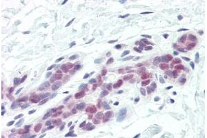 Immunohistochemistry (Paraffin-embedded Sections) (IHC (p)) image for anti-DFFA antibody (DNA Fragmentation Factor, 45kDa, alpha Polypeptide) (AA 2-21) (ABIN461876)