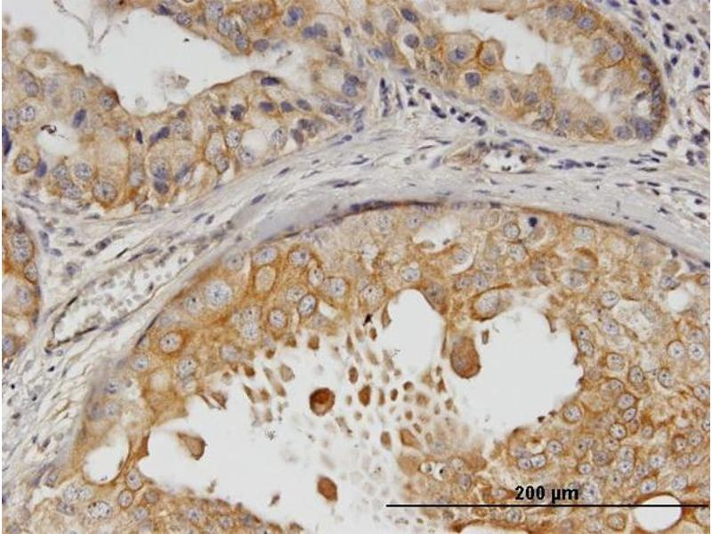 Immunostaining (ISt) image for anti-V-Erb-B2 erythroblastic Leukemia Viral Oncogene Homolog 2, Neuro/glioblastoma Derived Oncogene Homolog (Avian) (ERBB2) (AA 22-121), (partial) antibody (ABIN515370)