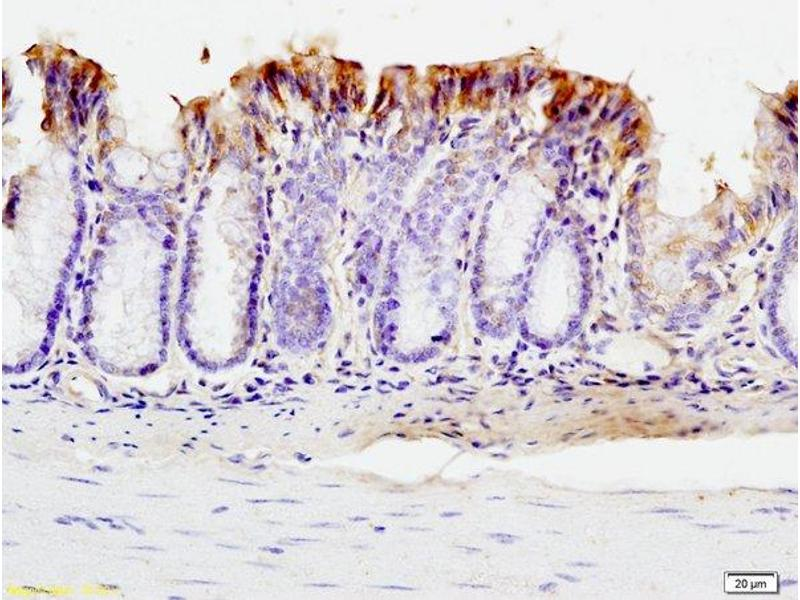Immunohistochemistry (IHC) image for anti-SMT3 Suppressor of Mif Two 3 Homolog 1 (S. Cerevisiae) (SUMO1) (AA 20-70) antibody (ABIN687397)