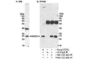 Western Blotting (WB) image for anti-MAD2 Mitotic Arrest Deficient-Like 1 (Yeast) (MAD2L1) (AA 100-150) antibody (ABIN151995)