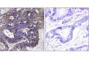 Image no. 1 for anti-Collagen, Type IV, alpha 2 (COL4A2) (AA 151-200) antibody (ABIN1534338)