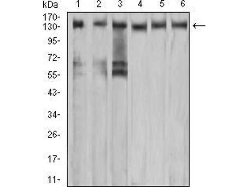 Western Blotting (WB) image for anti-Met Proto-Oncogene (MET) (AA 743-932) antibody (ABIN5542707)