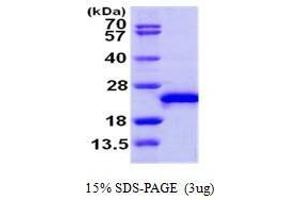 Image no. 1 for Ras-Related C3 Botulinum Toxin Substrate 3 (Rho Family, Small GTP Binding Protein Rac3) (RAC3) (AA 1-189) protein (ABIN935105)