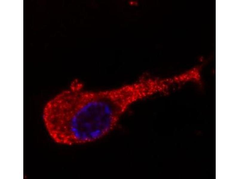 Image no. 2 for anti-Neurofilament Medium Protein antibody (ABIN94435)