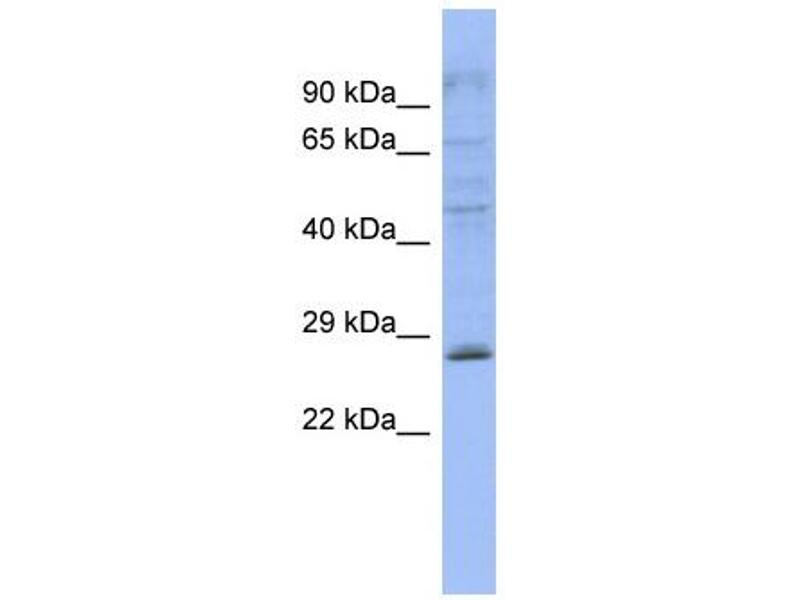Western Blotting (WB) image for anti-Pleckstrin Homology Domain Containing, Family B (Evectins) Member 2 (PLEKHB2) (Middle Region) antibody (ABIN503917)