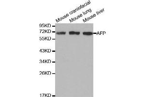 Image no. 1 for anti-alpha-Fetoprotein (AFP) (C-Term) antibody (ABIN3020666)