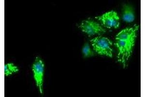 Image no. 1 for anti-Isocitrate Dehydrogenase 3 (NAD+) alpha (IDH3A) antibody (ABIN2723867)