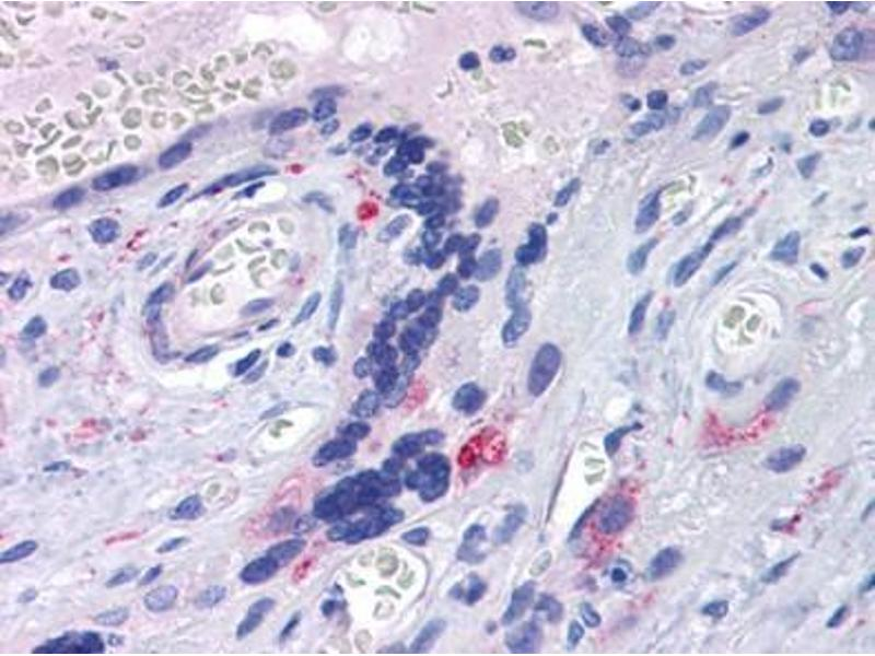 Immunohistochemistry (Paraffin-embedded Sections) (IHC (p)) image for anti-Toll-Like Receptor 7 (TLR7) (AA 900-950) antibody (ABIN615823)