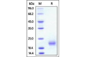 Image no. 1 for Tumor Necrosis Factor Receptor Superfamily, Member 18 (TNFRSF18) (AA 20-121) protein (His tag) (ABIN4949209)