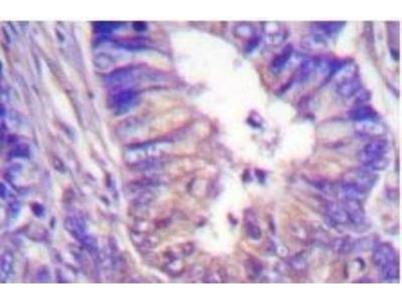Immunohistochemistry (IHC) image for anti-Protein Kinase A, alpha (PRKACA) antibody (ABIN408069)