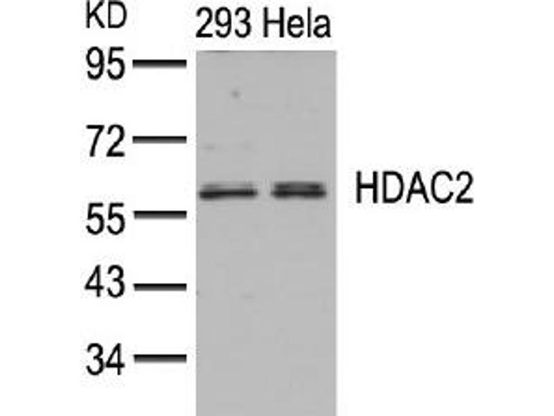 Image no. 3 for anti-Histone Deacetylase 2 (HDAC2) (AA 392-396) antibody (ABIN197336)