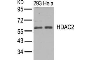 image for anti-Histone Deacetylase 2 (HDAC2) (AA 392-396) antibody (ABIN197336)