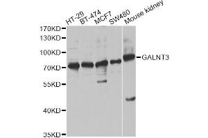 Image no. 1 for anti-UDP-N-Acetyl-alpha-D-Galactosamine:polypeptide N-Acetylgalactosaminyltransferase 3 (GalNAc-T3) (GALNT3) antibody (ABIN6568228)