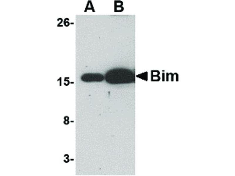 Western Blotting (WB) image for anti-BCL2-Like 11 (Apoptosis Facilitator) (BCL2L11) antibody (ABIN6655897)