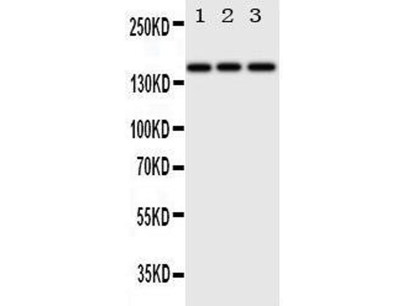 Western Blotting (WB) image for anti-ERBB4 antibody (V-Erb-A erythroblastic Leukemia Viral Oncogene Homolog 4 (Avian)) (AA 35-51) (ABIN3044100)