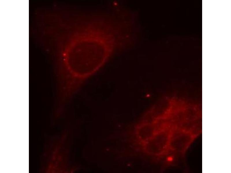 Immunofluorescence (IF) image for anti-SHC (Src Homology 2 Domain Containing) Transforming Protein 1 (SHC1) (pTyr349) antibody (ABIN2987769)