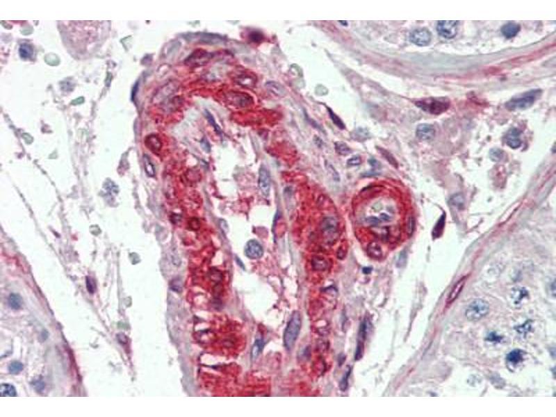 Image no. 1 for anti-LPP antibody (ABIN462159)