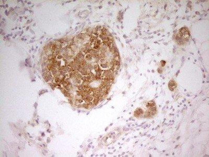 Immunohistochemistry (IHC) image for anti-P21-Activated Kinase 4 (PAK4) antibody (ABIN4343477)