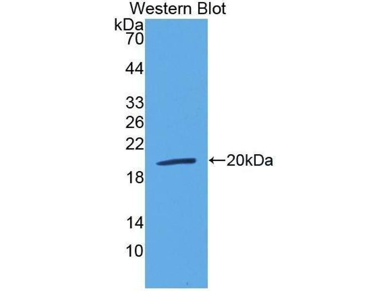 Western Blotting (WB) image for anti-Lymphotoxin beta Receptor (TNFR Superfamily, Member 3) (LTBR) (AA 66-215) antibody (ABIN1172956)