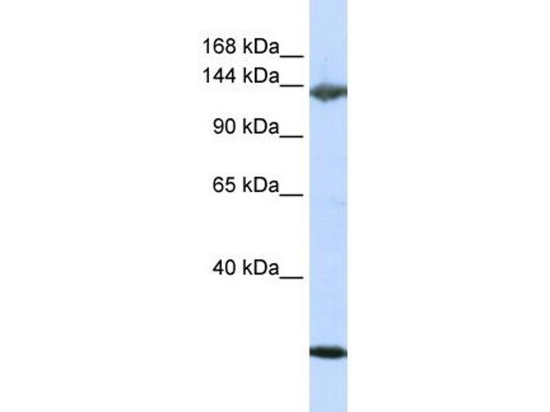 Western Blotting (WB) image for anti-Jagged 2 (JAG2) (N-Term) antibody (ABIN2782165)