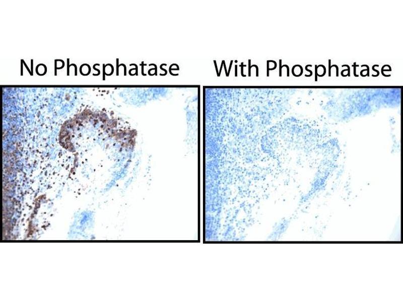 image for anti-Epidermal Growth Factor Receptor (EGFR) (pTyr845) antibody (ABIN967602)