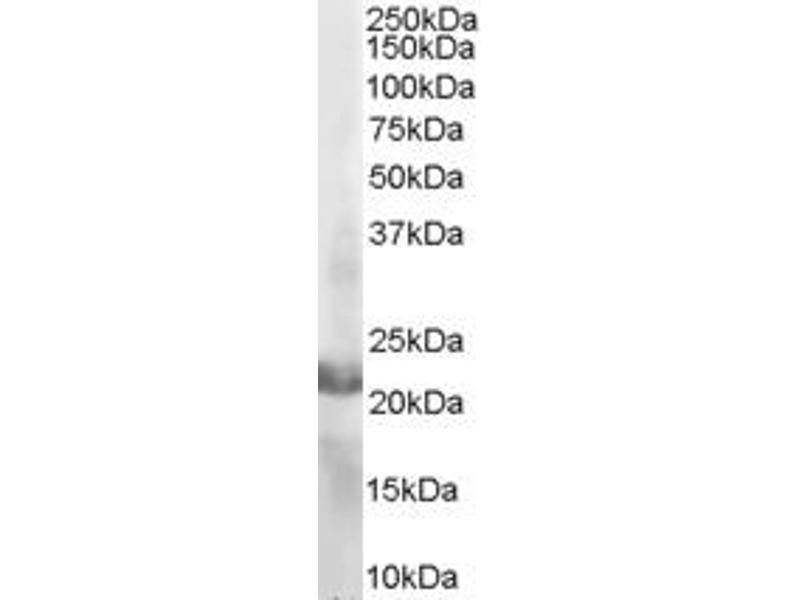 Western Blotting (WB) image for anti-RAC2 antibody (Ras-Related C3 Botulinum Toxin Substrate 2 (Rho Family, Small GTP Binding Protein Rac2)) (C-Term) (ABIN184689)