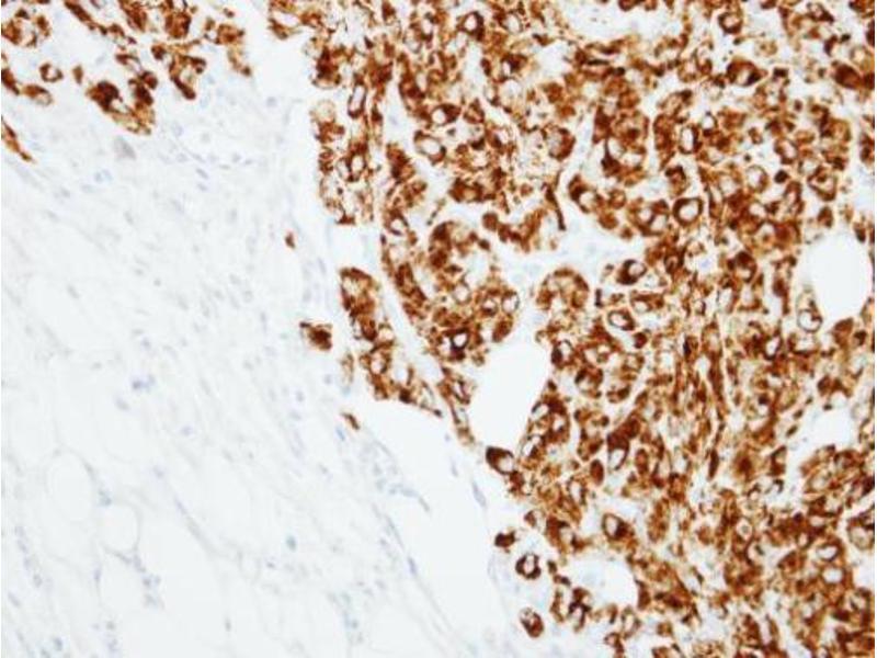 Immunohistochemistry (IHC) image for anti-TNFSF11 antibody (Tumor Necrosis Factor (Ligand) Superfamily, Member 11) (ABIN2497217)