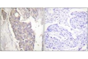 Immunohistochemistry (IHC) image for anti-FAS antibody (Fas (TNF Receptor Superfamily, Member 6)) (ABIN1533427)