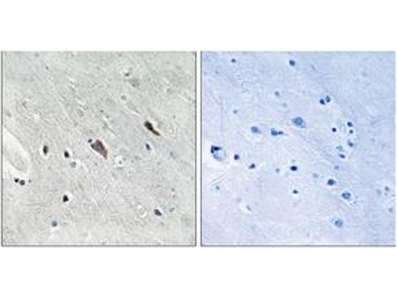 Immunohistochemistry (IHC) image for anti-GRB2-Associated Binding Protein 2 (GAB2) (AA 609-658), (pTyr643) antibody (ABIN1532144)