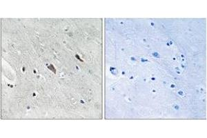 Immunohistochemistry (IHC) image for anti-GAB2 antibody (GRB2-Associated Binding Protein 2) (pTyr643) (ABIN1532144)