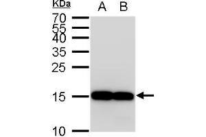 Image no. 5 for anti-Allograft Inflammatory Factor 1 (AIF1) (C-Term) antibody (ABIN2857032)