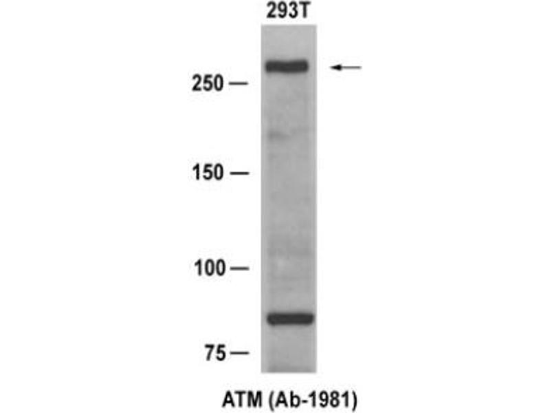 image for anti-ATM antibody (Ataxia Telangiectasia Mutated) (Ser1981) (ABIN319313)