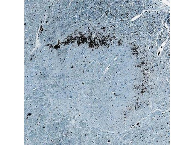 Immunohistochemistry (Paraffin-embedded Sections) (IHC (p)) image for anti-Brain-Derived Neurotrophic Factor (BDNF) antibody (ABIN4283827)
