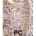 anti-Prostate Stem Cell Antigen (PSCA) antibody