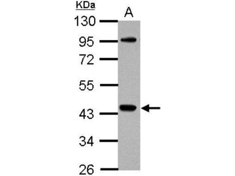 Western Blotting (WB) image for anti-Cytoplasmic Protein NCK1 antibody (NCK Adaptor Protein 1) (Center) (ABIN4338265)