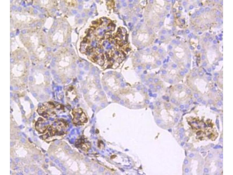 Immunohistochemistry (Paraffin-embedded Sections) (IHC (p)) image for anti-Interferon Regulatory Factor 7 (IRF7) antibody (ABIN5946619)