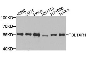 Western Blotting (WB) image for anti-Transducin (Beta)-Like 1 X-Linked Receptor 1 (TBL1XR1) antibody (ABIN3069421)
